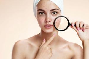 Cómo quitar las espinillas de la cara
